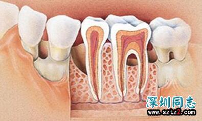 牙周病可唤醒休眠HIV